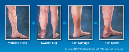 Symptoms Premier Vein Center Of Arlington Heights Il